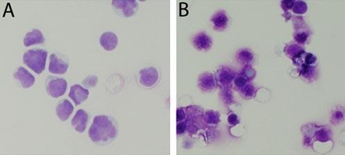 Bild A visar elakartade tumörceller från patienter med leukemi. I närvaro av en låg dos selen dör cellerna genom s k programmerad celldöd. Bild B visar hur tumörceller skrumpnar ihop och dör.